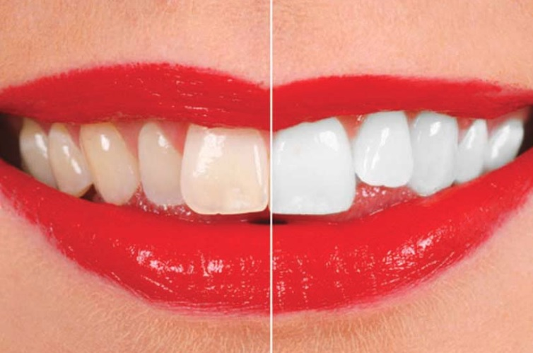 Teeth Whitening in Sydney