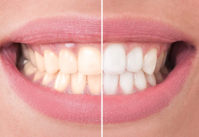 Professional Teeth Whitening in Sydney