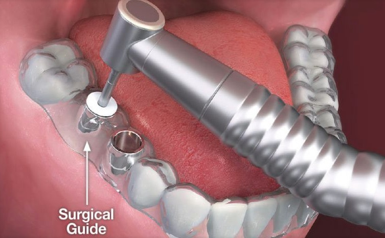 Single tooth implant cost in Sydney