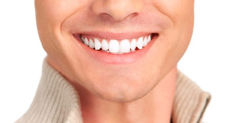 Zoom teeth whitening in Sydney
