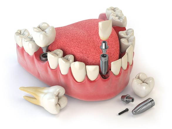dental implants cost in Sydney