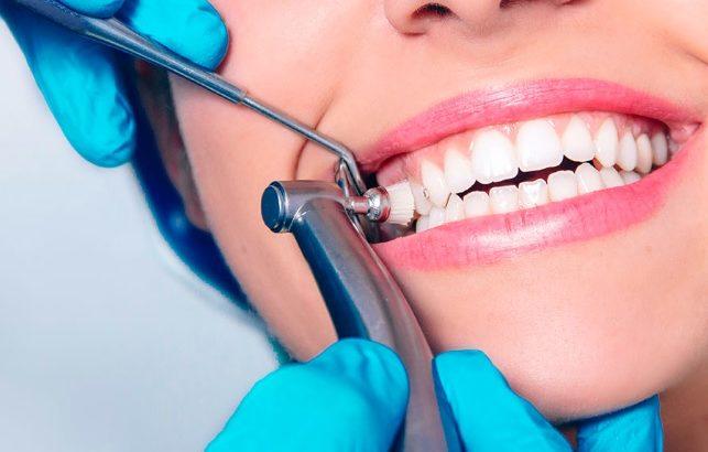 teeth cleaning in Sydney