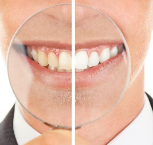 teeth whitening cost in Sydney