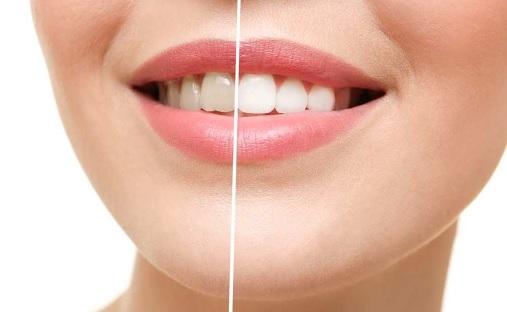 Sydney teeth whitening