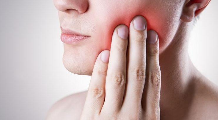 wisdom teeth removal in Sydney