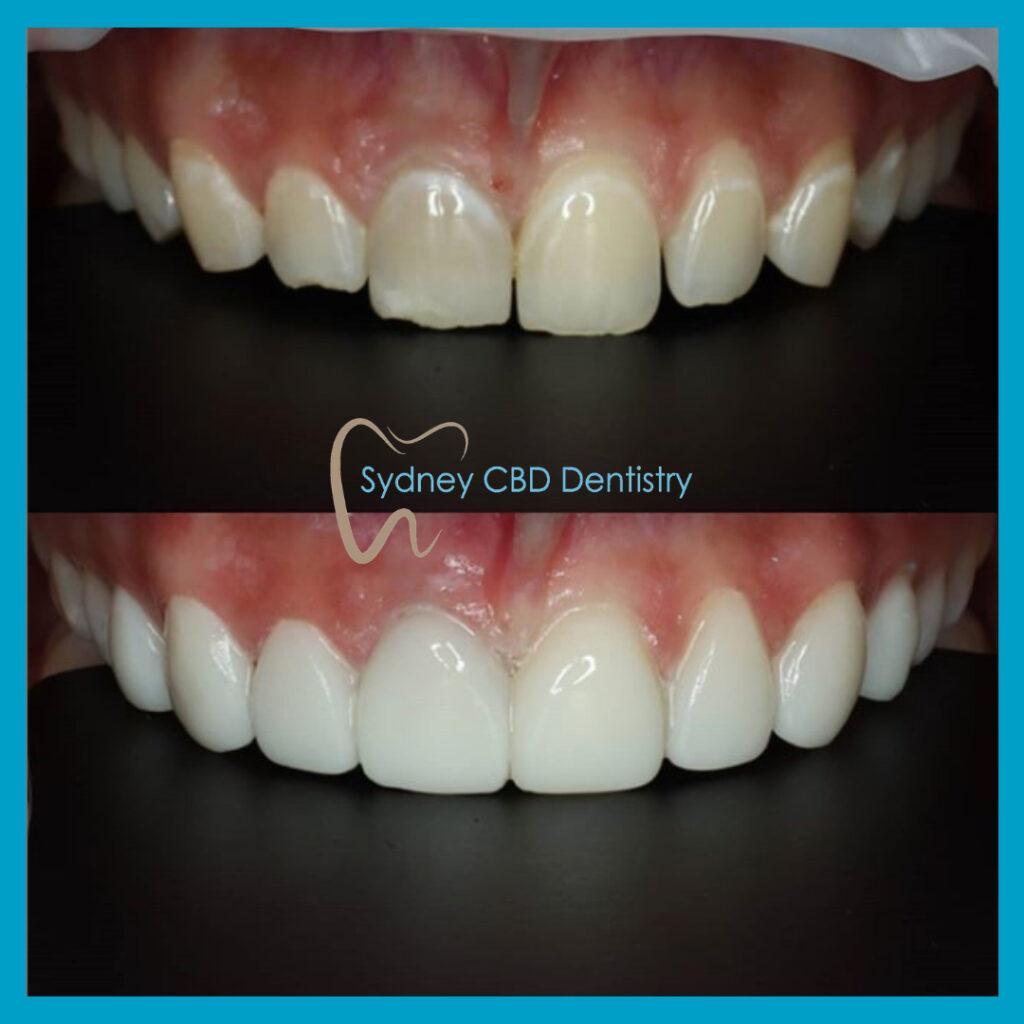 Estelite BW direct veneers at Sydney CBD Dentistry