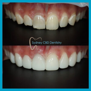 Estelite BW direct veneers at Sydney CBD Dentistry
