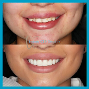 direct veneers from Sydney CBD Dentistry