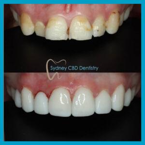 direct veneers in Sydney CBD Dentistry
