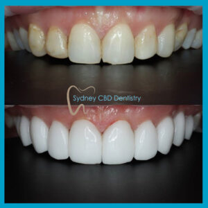 Emax Veneers at Sydney CBD Dentistry