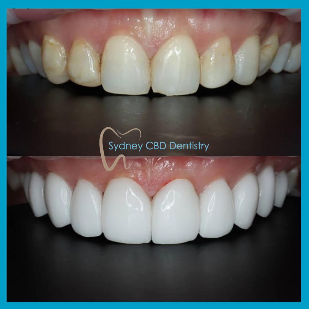 Emax Veneers at Sydney CBD Dentistry