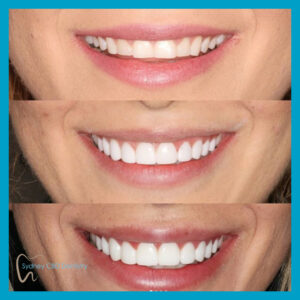 Emax BL2-LT veneers done by Dr Mark Nieh at Sydney CBD Dentistry