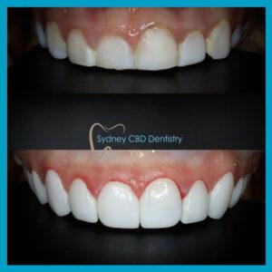 Emax BL1-LT at Sydney CBD Dentistry