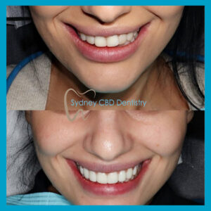 composite veneers in Sydney CBD Dentistry