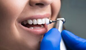 Teeth Cleaning Cost in Sydney