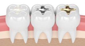 Tooth Filling Cost