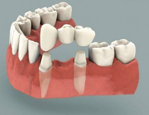 Tooth Replacement Cost