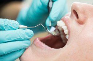 Cheap Dentist Near Me